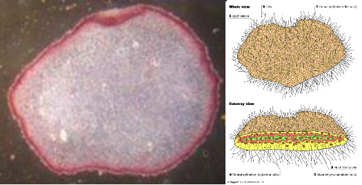 placazoan