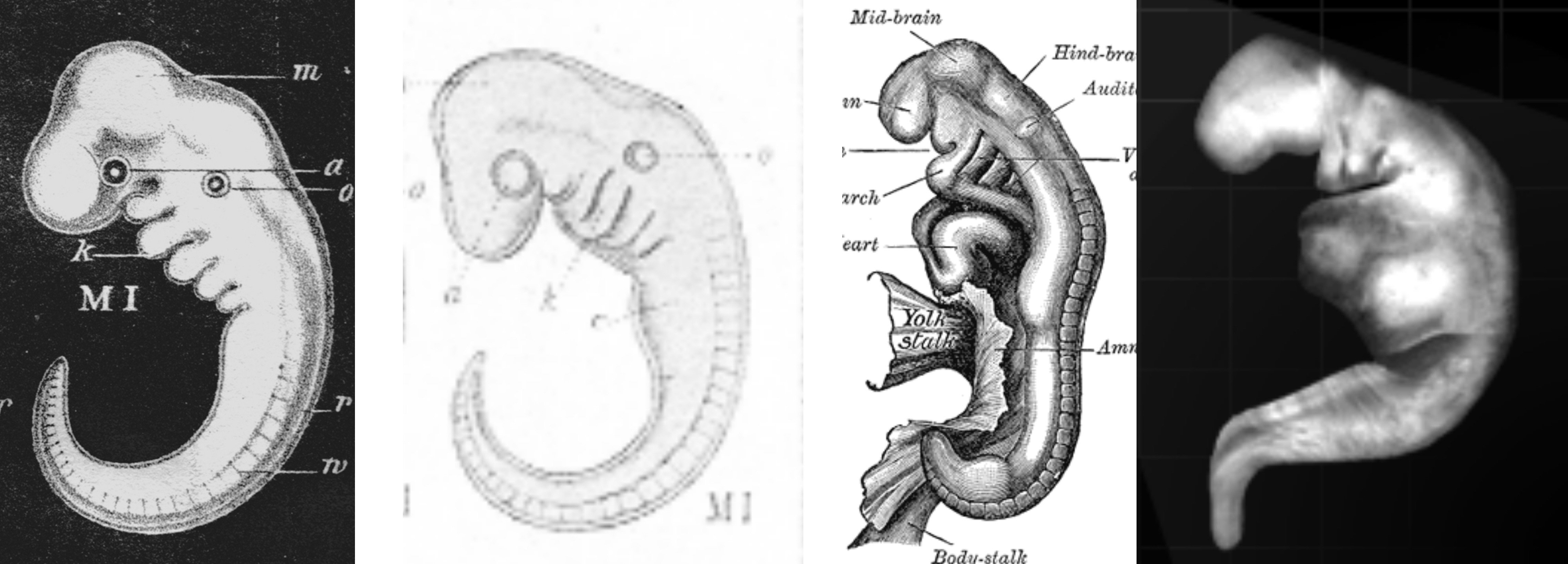 """Creationist foists """"fraudulent"""" embryo picture on his readers ..."""